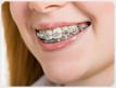 Ortodoncia (Incognito, brackets, Invisalign)